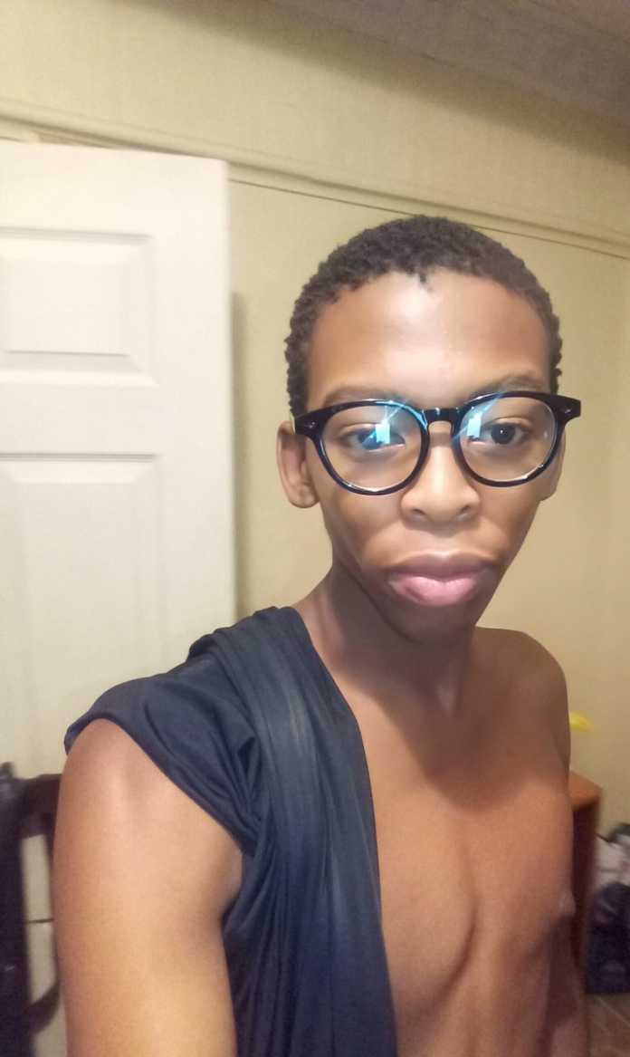 'HIV Doesn't Define Who You Are,' 19 Year Old Opens Up