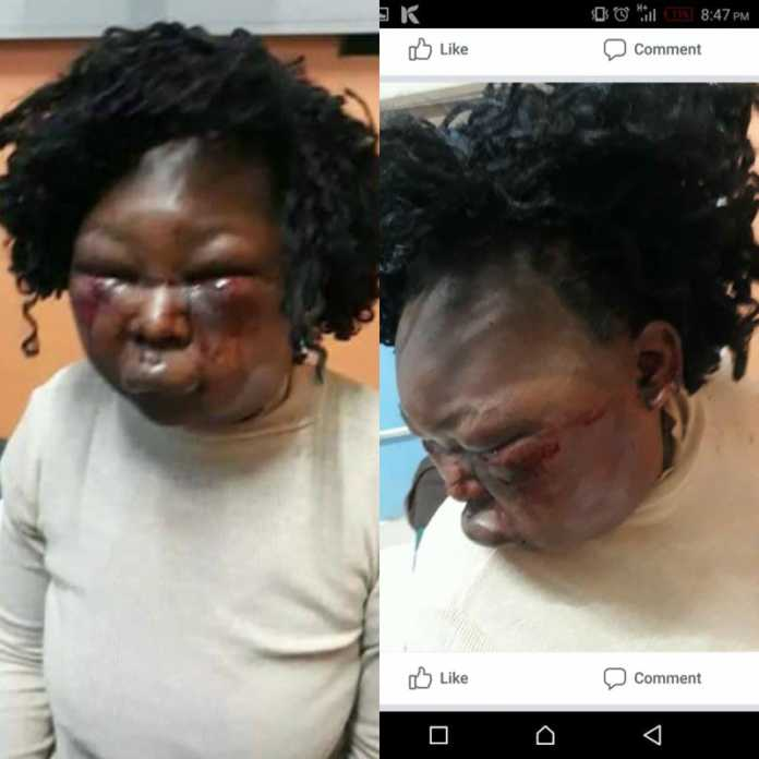 Valerie Masibo, the wife who was battered by her husband