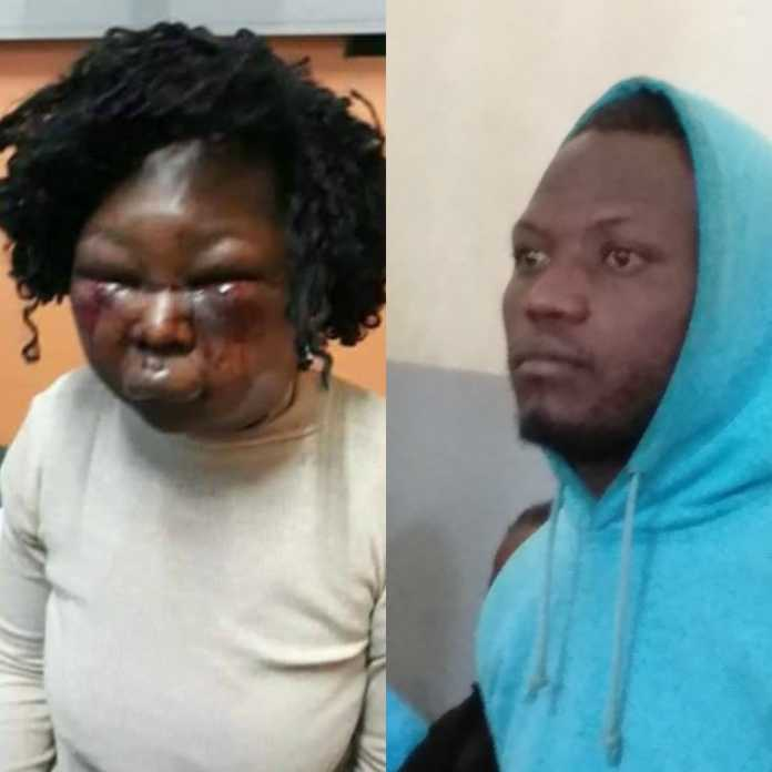 Valerie Masibo, woman who was battered by hubby