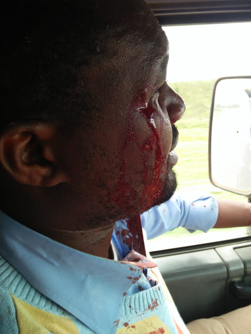 WhatsApp Image 2019 06 03 at 4.44.46 PM - Photos of KTN journalist attacked by high school students