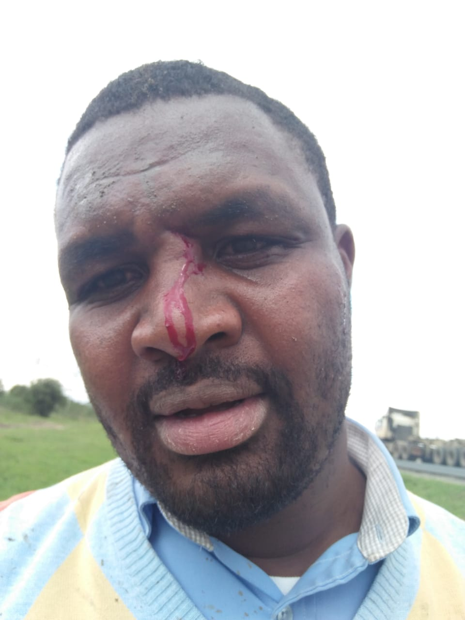 WhatsApp Image 2019 06 03 at 4.44.54 PM - Photos of KTN journalist attacked by high school students