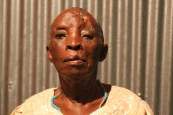 unnamed 2 350x233 - 'Please pay me Ksh 17M,' Woman begs 18 years after accident